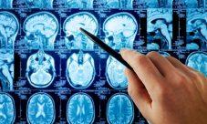 ¿Cuál es la ciencia que estudia al sistema nervioso?