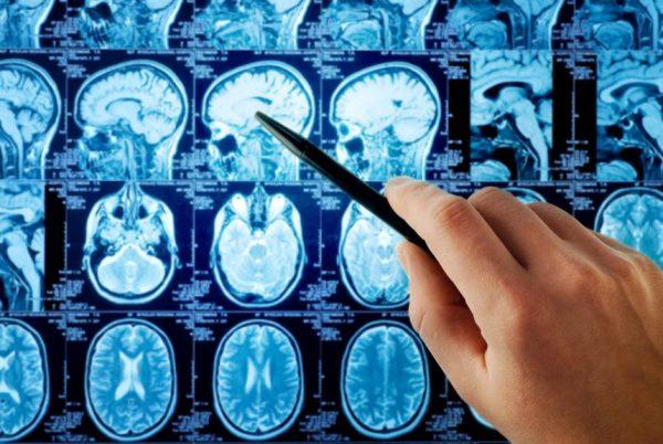 descubre cuál es la ciencia que estudia al sistema nervioso